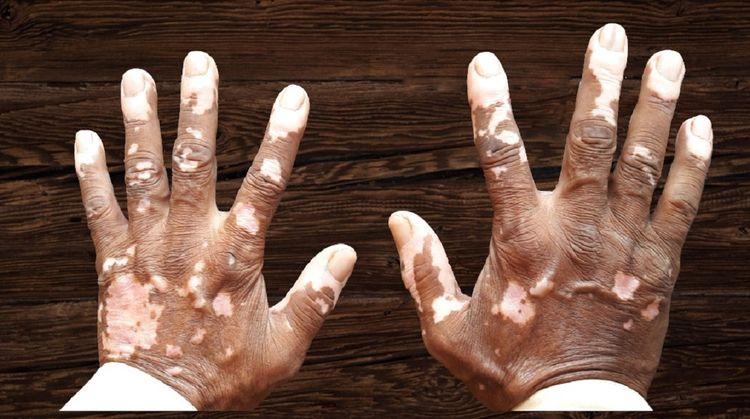 Vitiligo Treatment Mumbai succe - rahulx   ello
