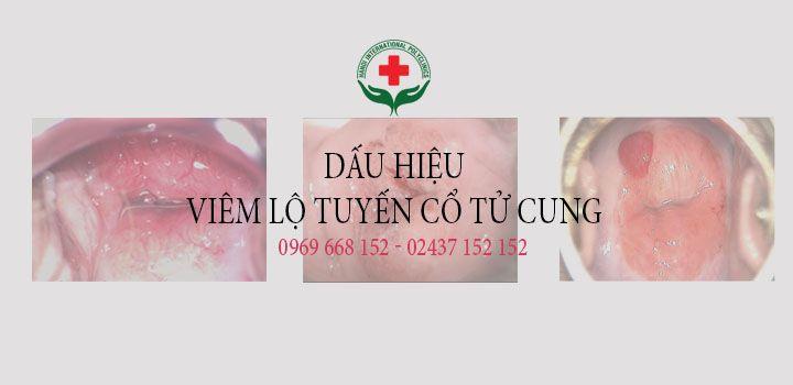 Dấu hiệu viêm lộ tuyến cổ tử cu - viemlotuyencotucung152   ello