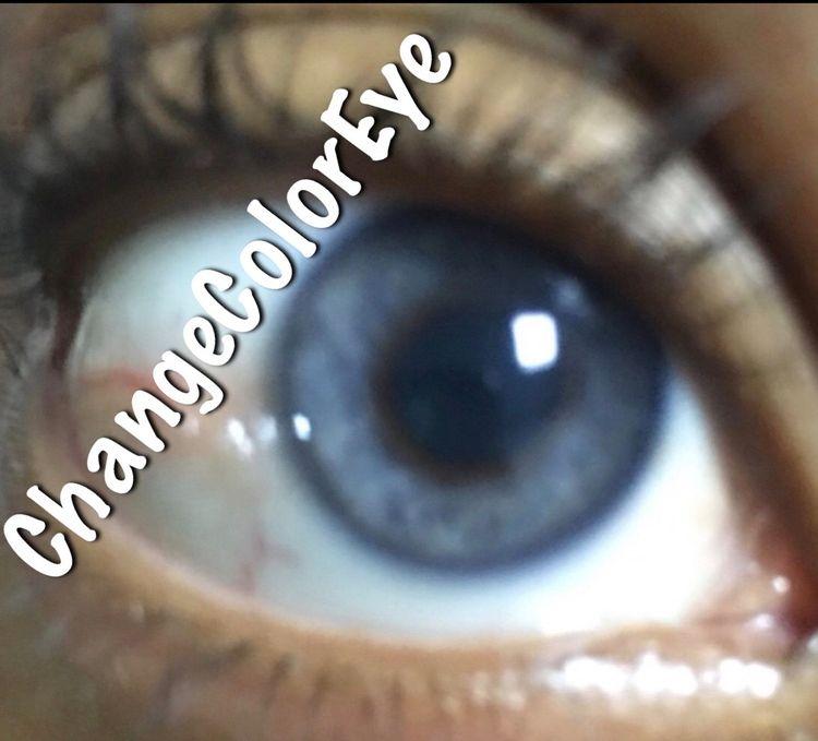 EYE COLOR LASER - changeeyecolor | ello
