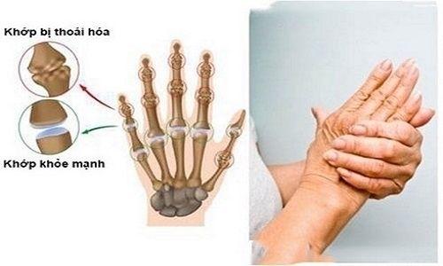 Thoái hóa khớp cổ tay là bệnh l - alphabone | ello