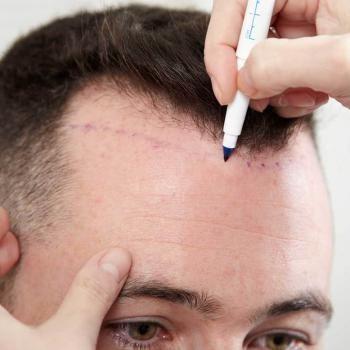 UK Hair Clinic - Revive Skin ha - revivehairandskin | ello