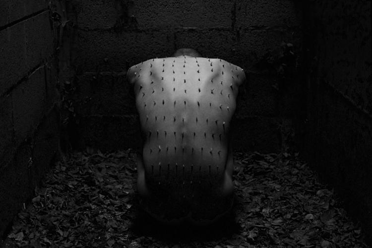 Matteo Rigosa Photography (ig matteorigosaphotography tb phototherapyproject) - self-portrait - ast Michele Venice - Body Shield.jpg