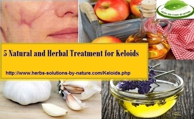 Keloids Herbal Treatment Keloid - herbs-solutions-by-nature | ello