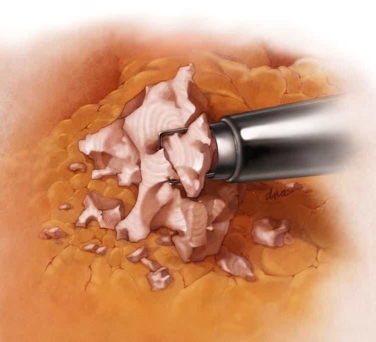 Fibroid Morcellation - medical, illustration - alexandrawbaker   ello
