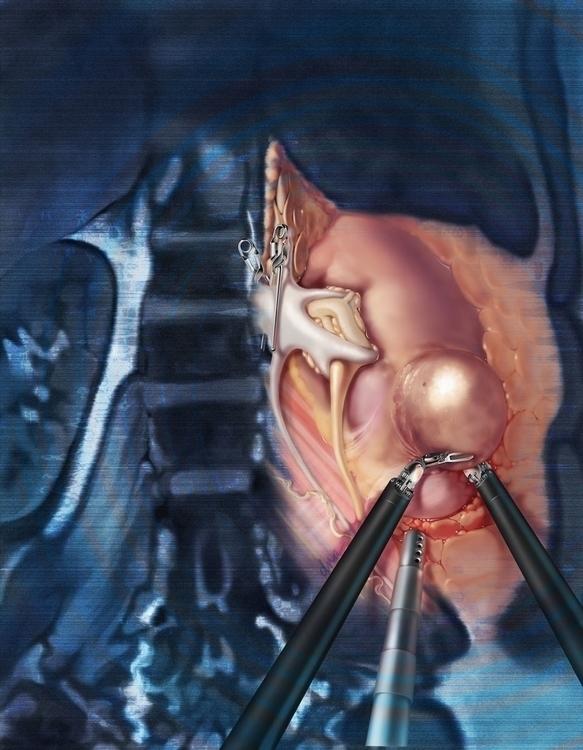 Nephrectomy - medical, illustration - alexandrawbaker | ello