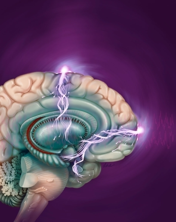 Electroconvulsive therapy - medical - alexandrawbaker | ello