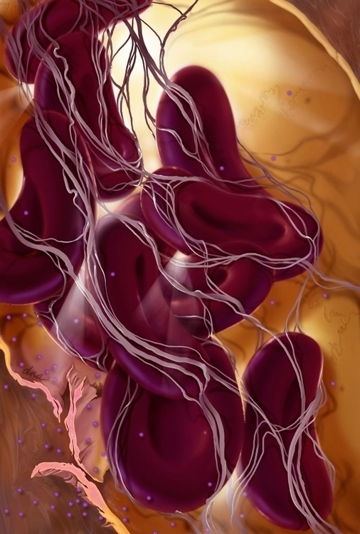 Inflammation - medical, illustration - alexandrawbaker | ello