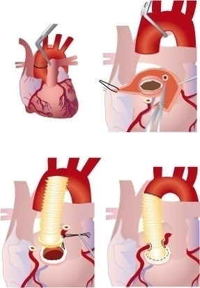 heart surgery - gemmastekelenburg | ello