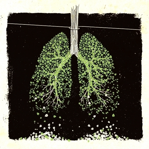 Tree - tree, lung, trap, leafs - maxter-3164 | ello