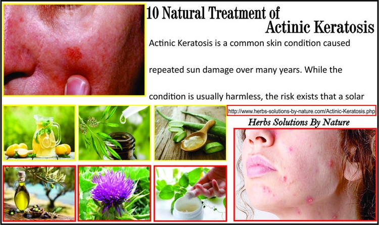 10 Natural Treatment Actinic Ke - herbs-solutions-by-nature | ello