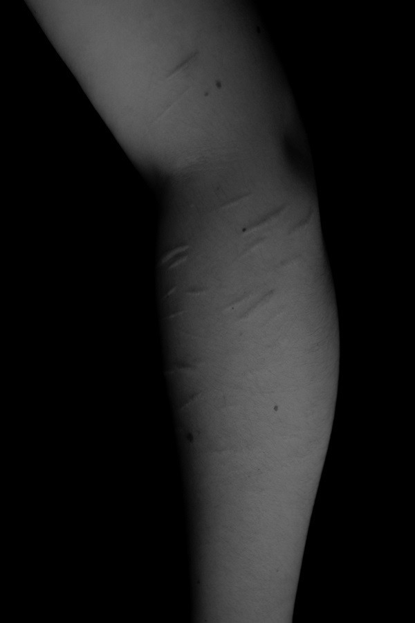 corpus_vertebrae Post 17 Jul 2017 20:13:57 UTC | ello