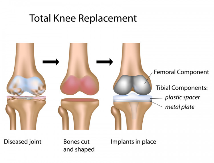 Knee Replacement Hospitals Chen - poojagera125 | ello