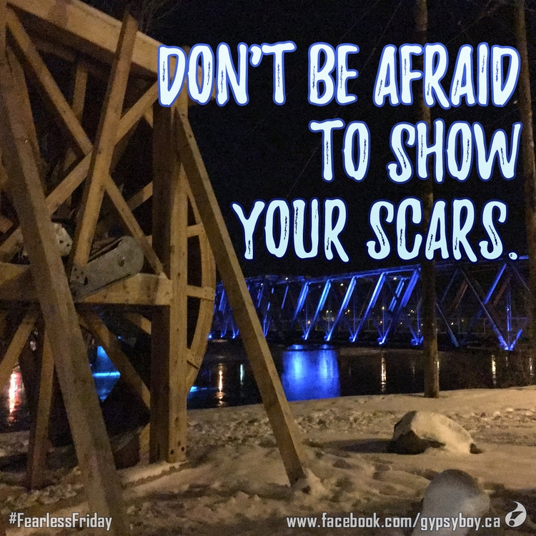 afraid show scars - FearlessFriday - talonracer | ello