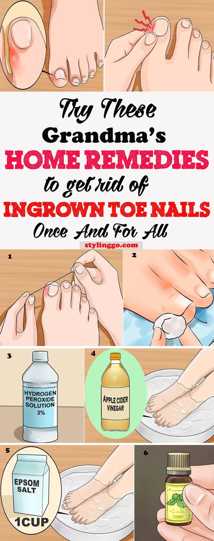 rid ingrown toenail - achristiansg | ello