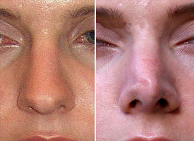 घर पर अपनी नाक का आकार बदलना सं - tendamarius | ello