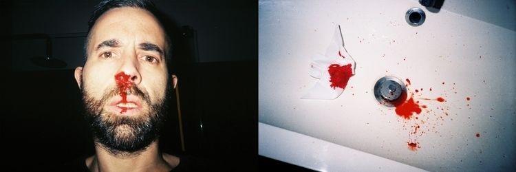 selfportrait, blood, bathroom - jpfernandes | ello