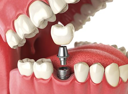 dental implant Norwalk Ct, cont - estheticdental | ello