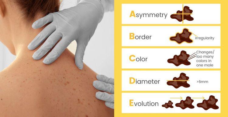 city Dharwad, Dr. Mahipal skin  - droamahipalskinclinic | ello