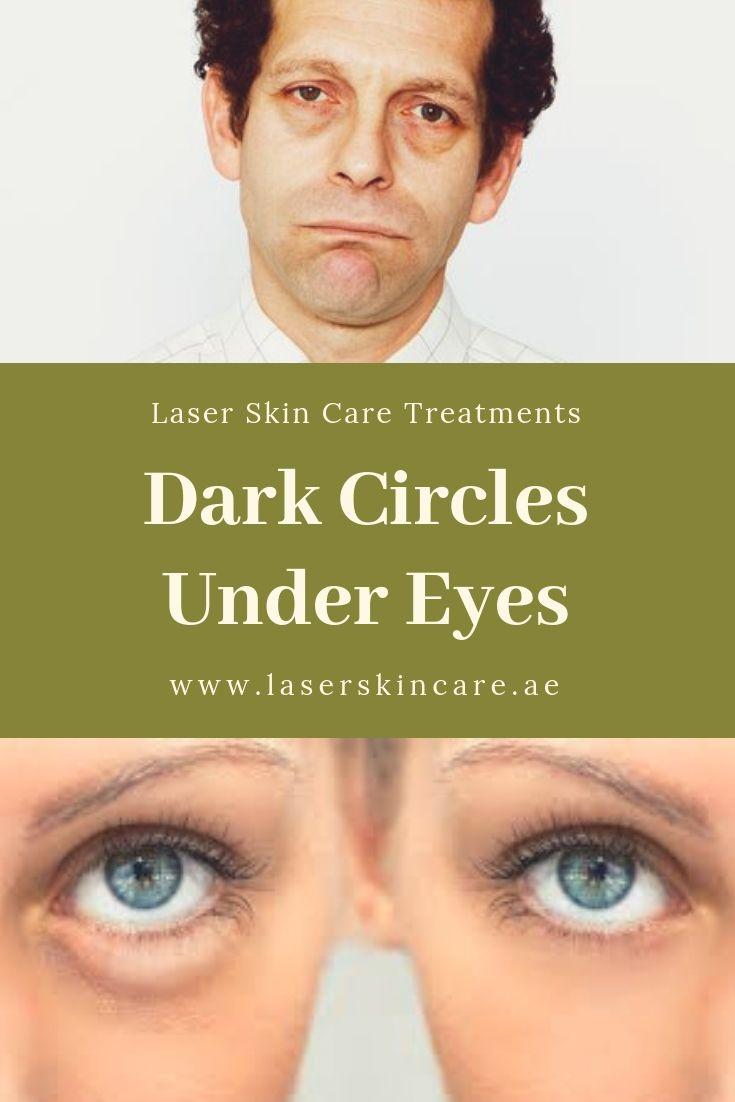Dark Circles Treatments chance  - laserskincare | ello
