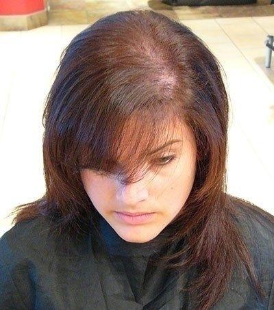 Treating Hair Loss important ge - osamahtd | ello