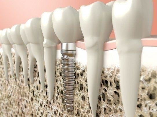 @implantdentar Cover Image