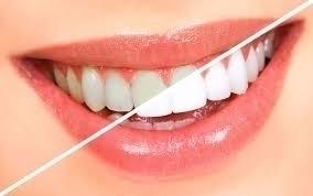 Dr.Nimit Garg (@dentalclinicdelhi) Cover Image
