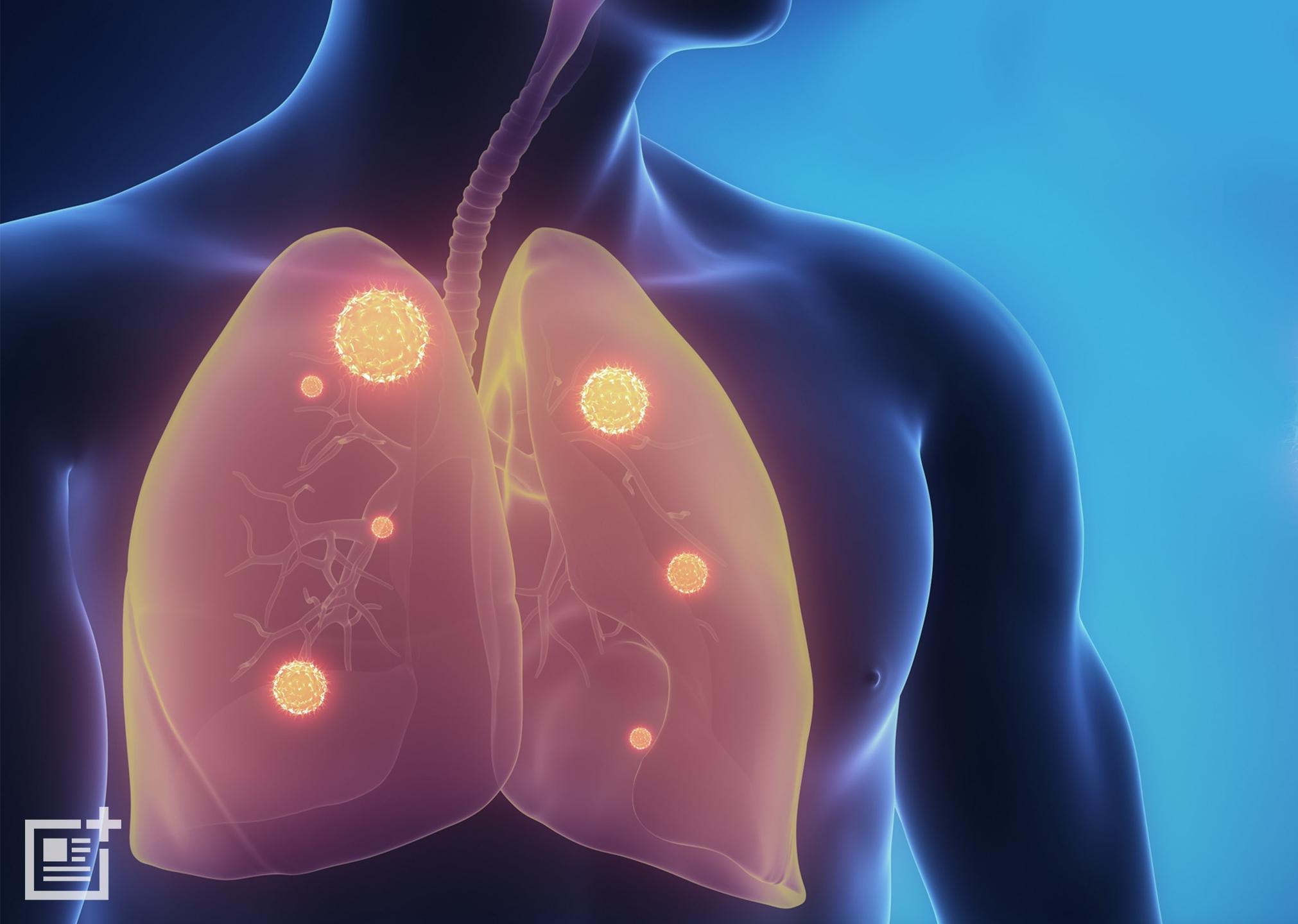 Is Pneumonia Con (@ispneumoniacontagious) Cover Image