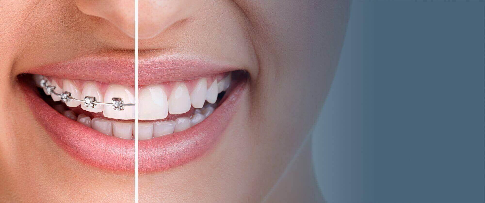 Advanced Orthodontics , Dr. Ferreira (@advbraces) Cover Image