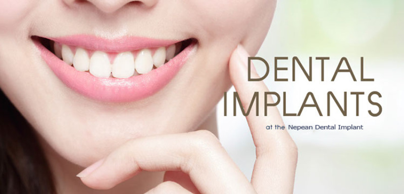 Nepean Dental Implants (@implants1) Cover Image