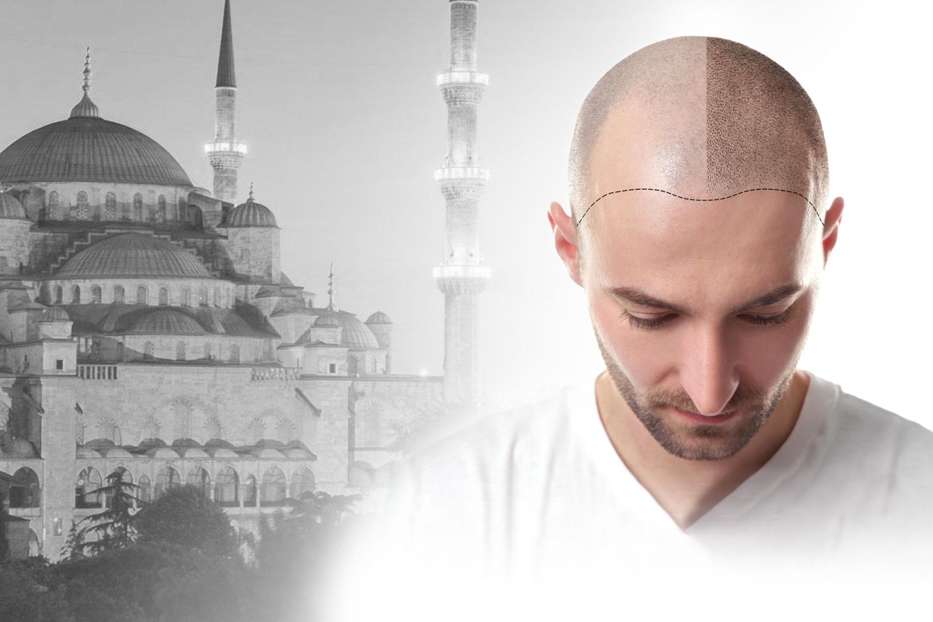 Global Health Hair (@globalhealthhair) Cover Image