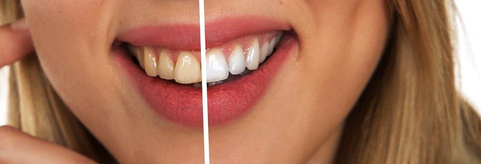 Dentist Lancaster (@dentistlancaster) Cover Image