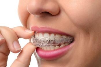 Norburn Dental Centre - North Burnaby Dentist (@dentalcentre7) Cover Image
