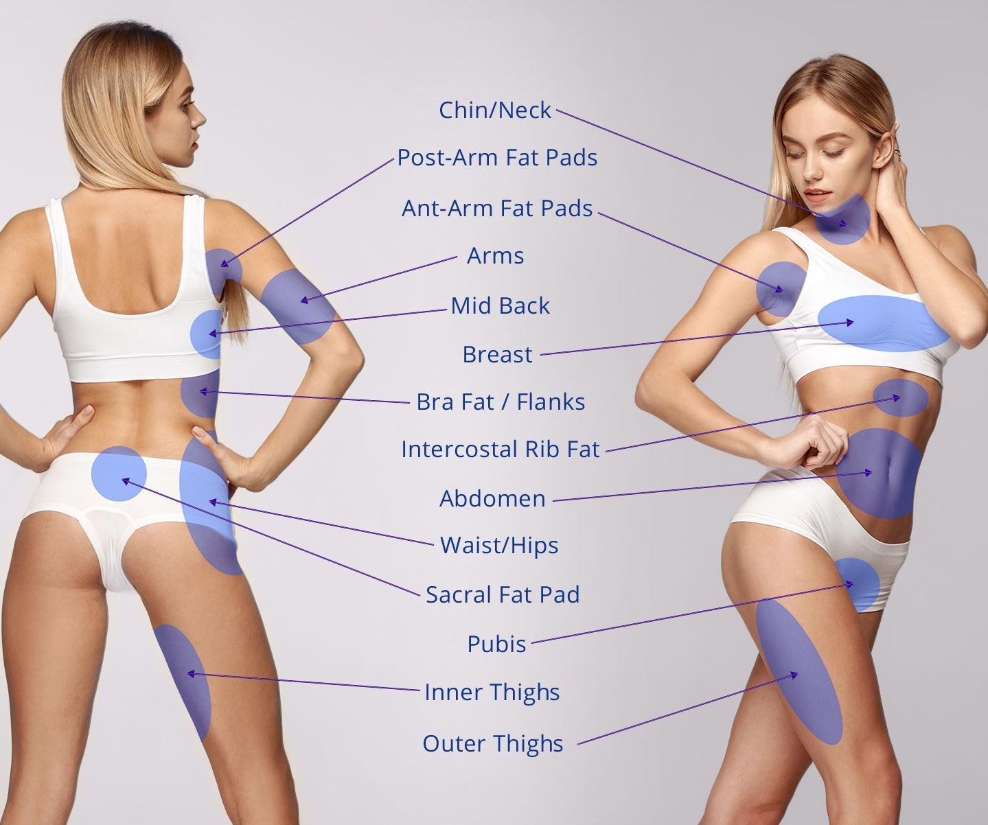 Chicago Liposuction (@chicagoliposuction) Cover Image
