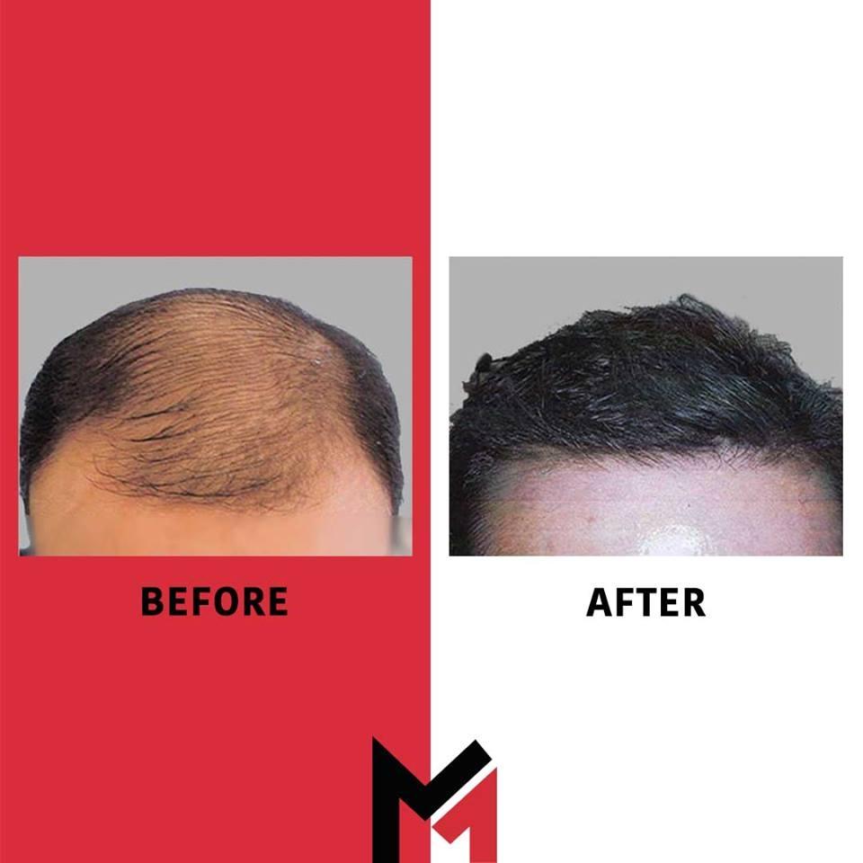 MAXIM Hair Restoration Houston (@maximhouston) Cover Image